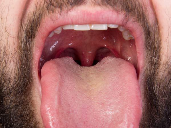 Normal Vs Enlarged Tonsil