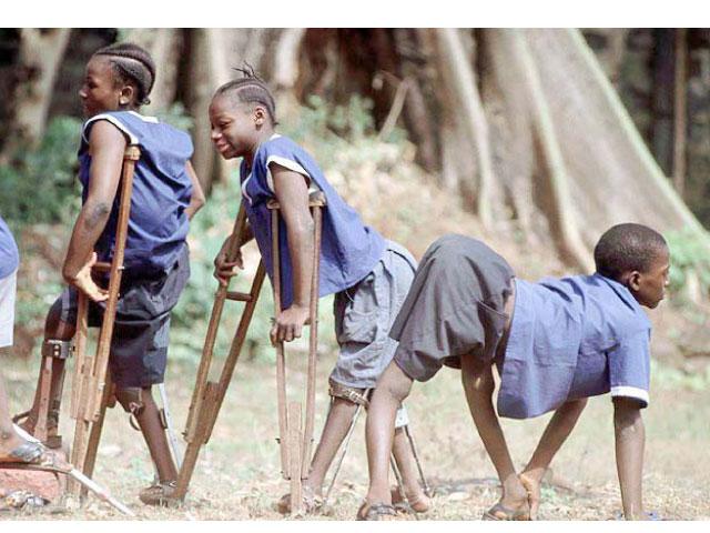 polio-victims