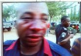 Injured NSCDC official