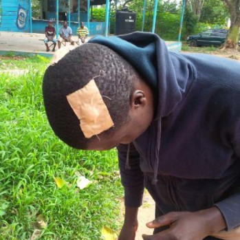 Wounded OOU Student
