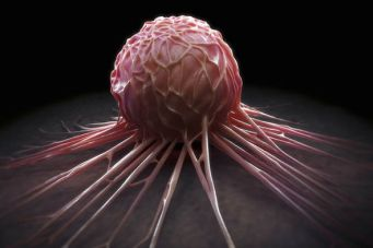 Cancer Tumor [Photo Credit:Daily Express]