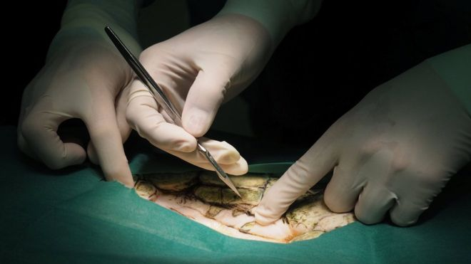 The turtle was operated on at a veterinary hospital in Bangkok [Photo Credit: BBC]