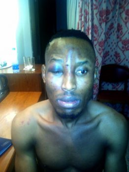 Mr 2KAY after the incident