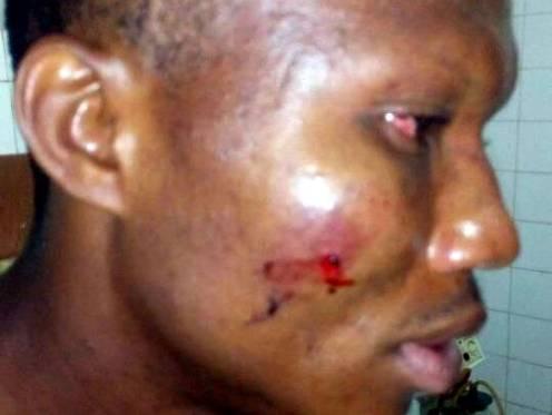 Attacked journalist, Charles Otu.