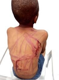 Photo showing bruises on the back of Master Chigozie Ogbu
