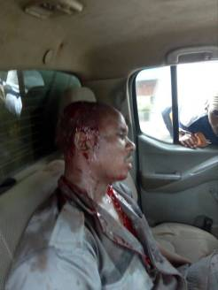 Unidentified customs officer rescued from being set ablaze by a crowd sympathetic to some fleeing smugglers_ Phot_Nigeria Customs Service