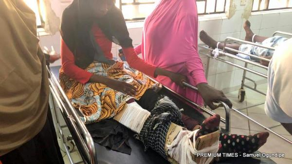 A 21-year-old woman whose right led is severely riddled with bullets is seen at the emergency section of Federal Medical Centre, Keffi. (October 30, 2018) Credits: Samuel Ogundipe/Premium Times.