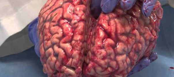 Freshly Removed Human Brain [Photo: Truth Inside Of You]