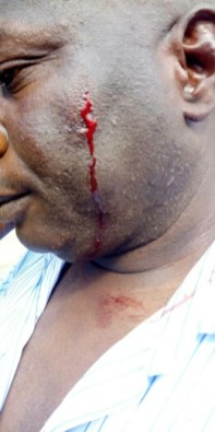 Wale Owolabi after the attack by the soldiers