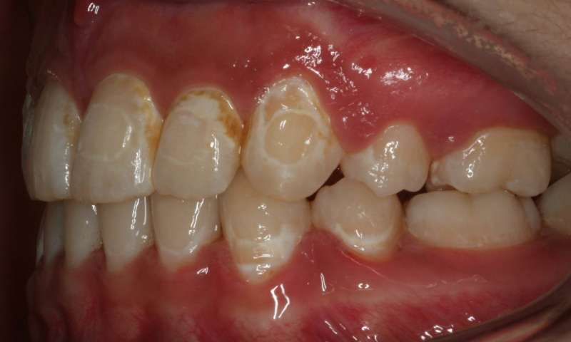 Decayed teeth