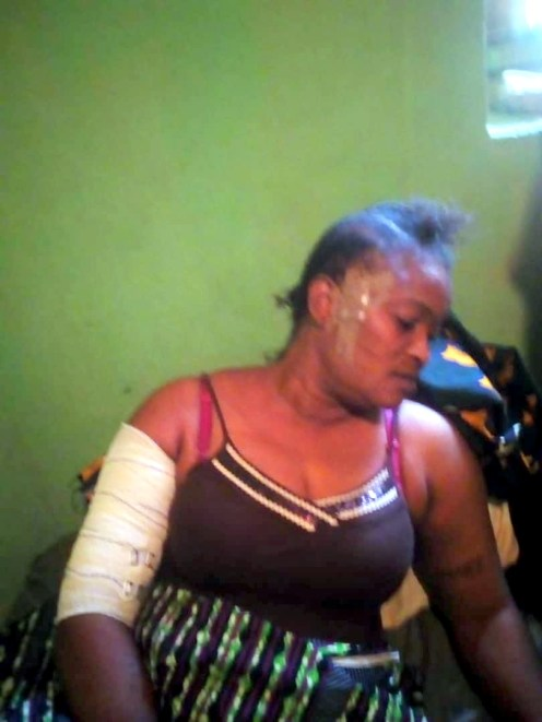 One of the injured politician in the fracas in the Oyo LG