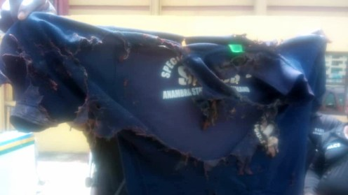 The clothes worn by the officer destroyed by the acid.