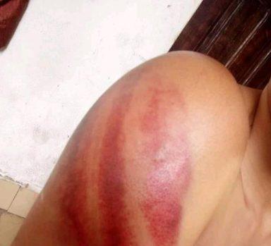 Part of Elizabeths bruised shoulder