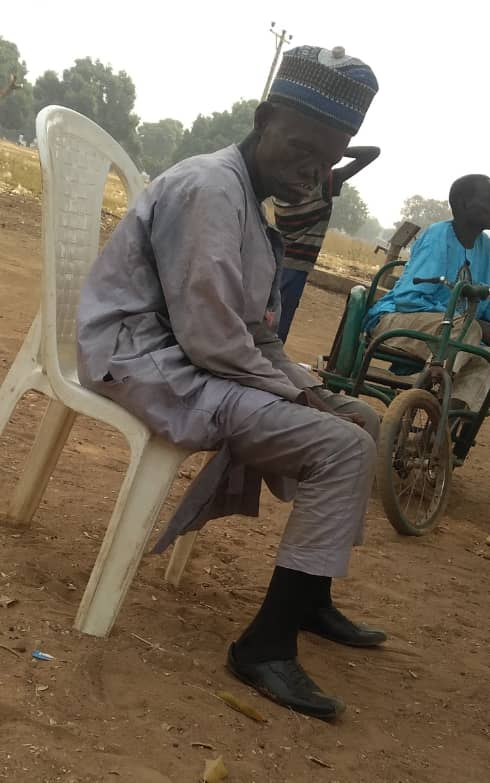 A leper in Alheri deformed in the face and hands due to inadequate treatment