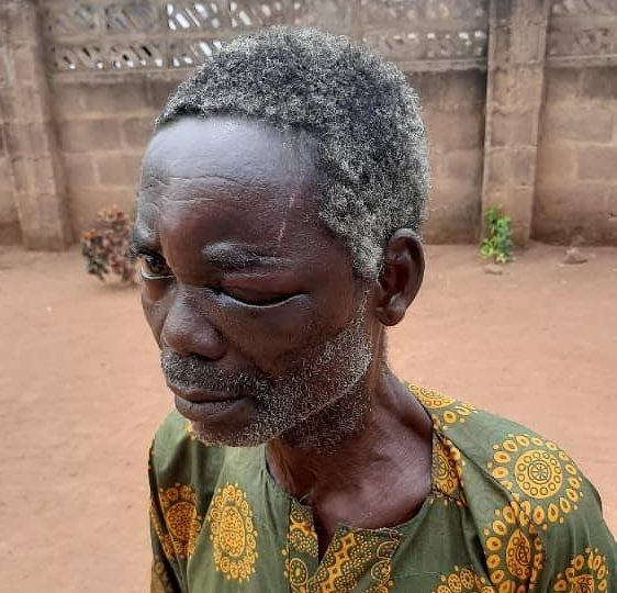 Pa Ayinde Oguntade, a farmer in Imeko, who was stabbed in the eye allegedly by herders on February 24, 2021.