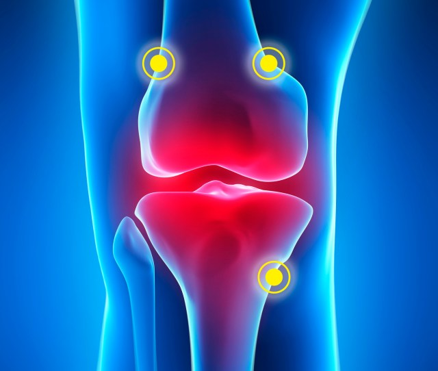 The Fda Has Cleared Halyard Healths Coolief Radiofrequency Treatment For Relief Of Chronic Osteoarthritis Knee Pain