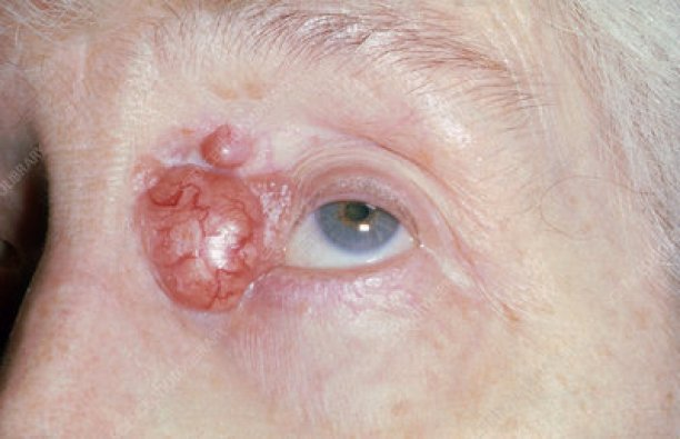 Basal-cell carcinoma - Stock Image - C036/6343 - Science Photo Library