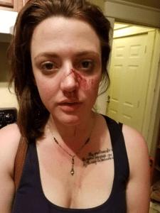 annie-storey-injuries