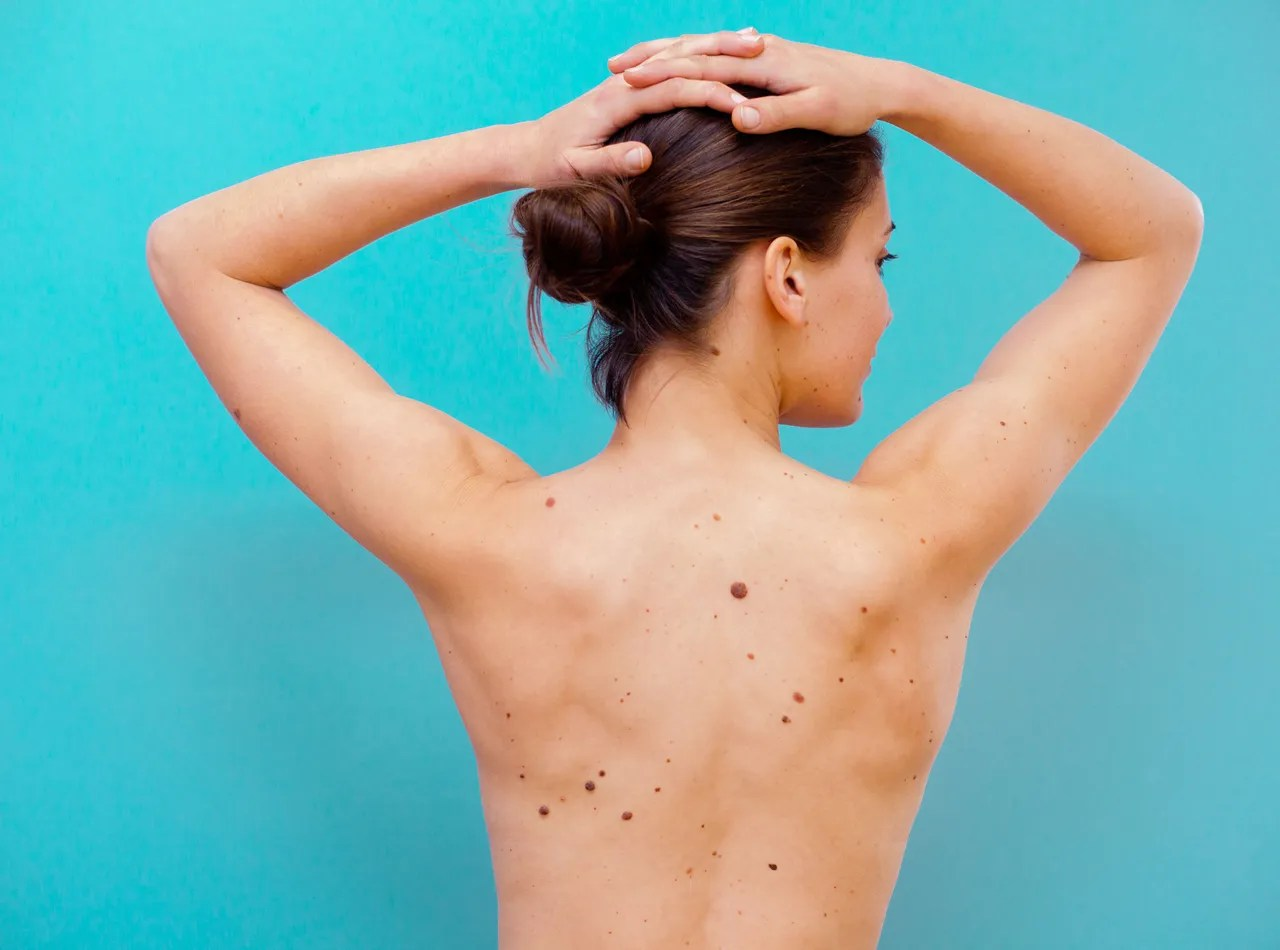 10 Signs Of Skin Cancer You Shouldn T Ignore