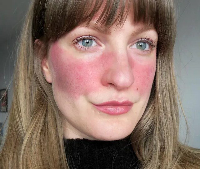 11 People Describe What Its Really Like To Have Rosacea