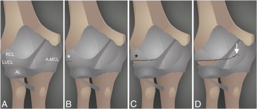 The elbow: review of anatomy and common collateral ...