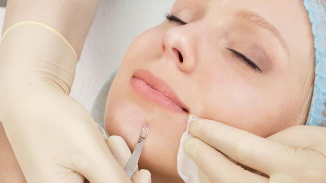 Perawatan facial untuk mengeluarkan komedo bisa menularkan HIV jika dilakukan tak steril. (Shutterstock)