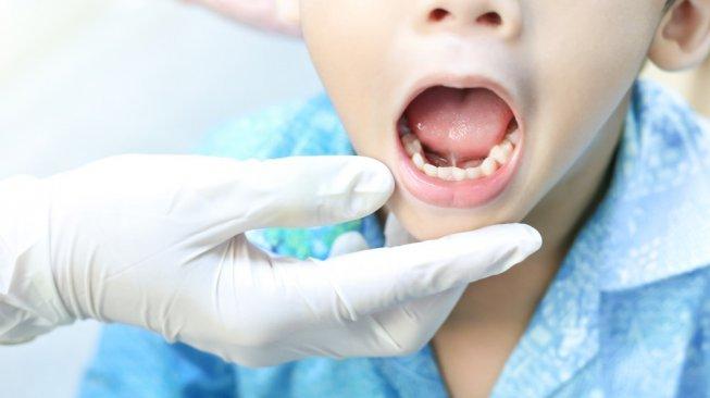 Obat sakit gigi berlubang - ilustrasi sakit gigi [shutterstock]