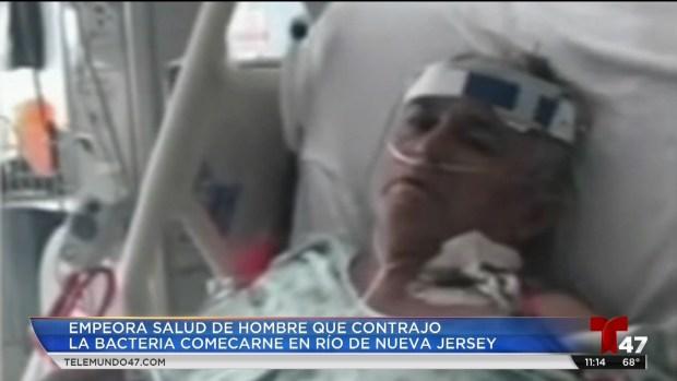 [TLMD - NY] Emperora salud de hispano infectado con bacteria comecarne