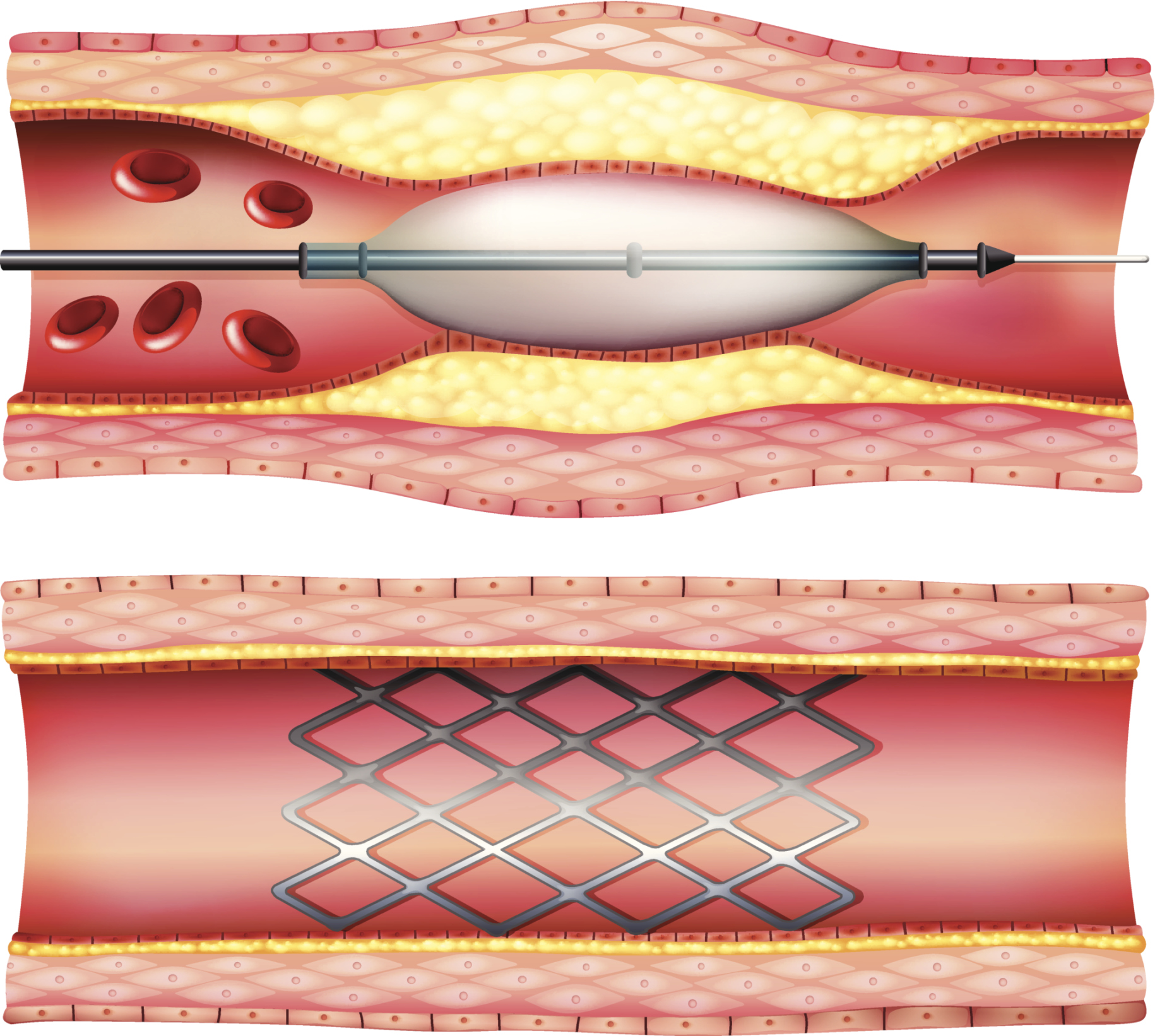 Interventional Cardiology A Look Back At 4 Decades Of Practice Changing Innovation