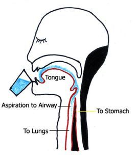 dysphagia swallowing swallow aspiration therapy oropharyngeal speech assessment language difficulties clip anatomy esophagus clipart oral diagram botox stroke pneumonia pathology