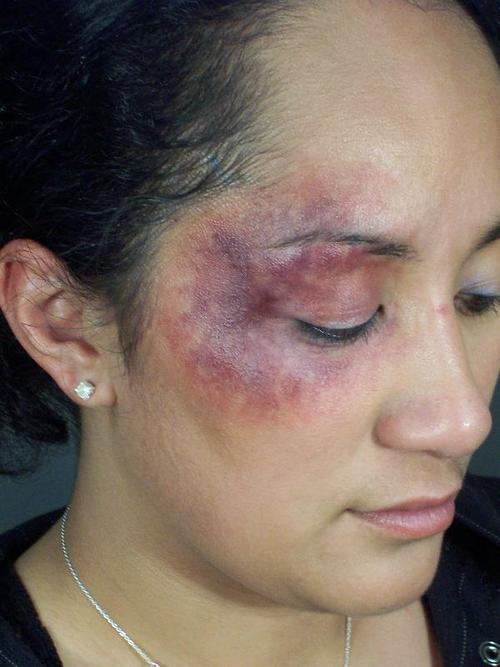 How To Do Fake Black Eye Makeup Makeupview