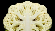 Morbus Alzheimer macht vergesslich. Am Ende sieht es so aus, als sei das Gehirn überhaupt kein Denkorgan mehr, sondern nur noch löchrig wie Blumenkohl.