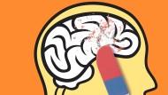 Wie ausradiert: Die Zerstörung immer größerer Teile des Gehirns führt zum großen Vergessen und am Ende sogar zum Verlust der Persönlichkeit.