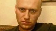 Nawalnyjs Krankheit: Folter der Nichtbehandlung