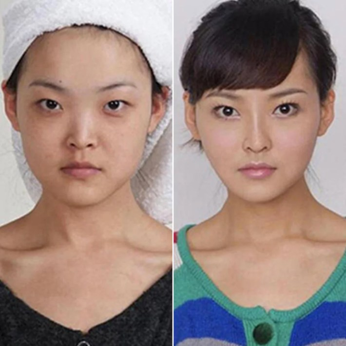 cosmetic surgery before and after photos from korea   popsugar