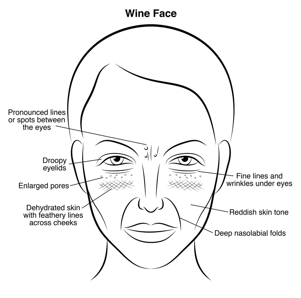 Acne Diagram Face