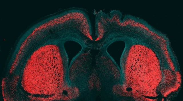 Image: Mouse brain