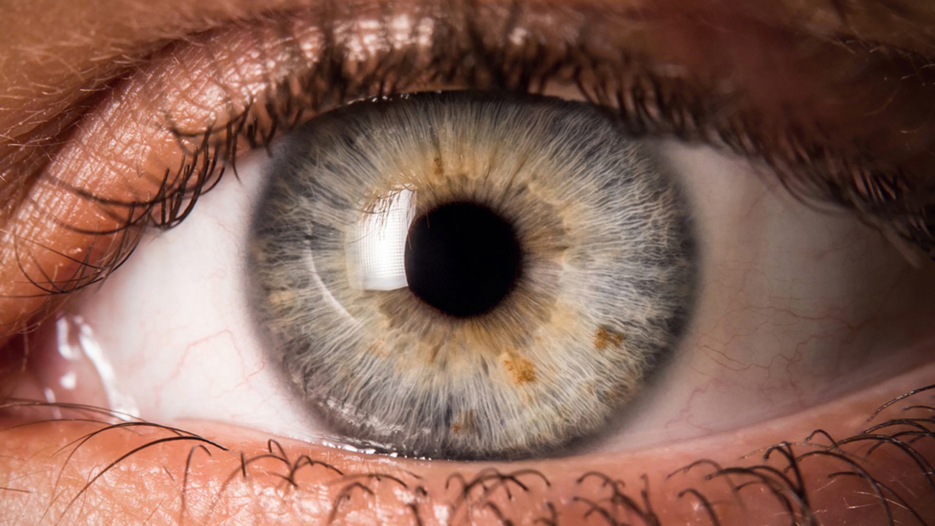 5 Eye Symptoms You Should Never Ignore