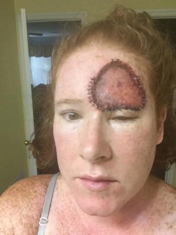 Bethany Greenway battled melanoma