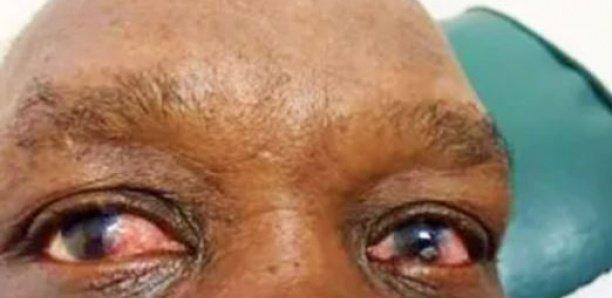 « Cette forme de conjonctivité notée actuellement peut être due à un virus » (ophtalmologiste)