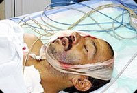 israelis shoot palestinian w/ learning disability in the face w/ rubber bullets