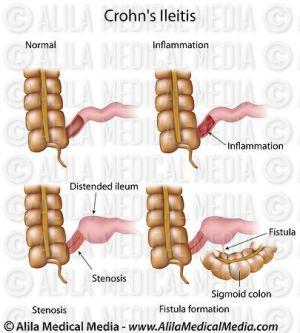 Alila Medical Media   Crohns ileitis   Medical illustration