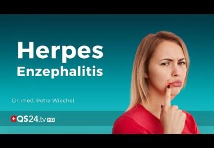 Herpes Enzephalitis: Ursache und Folgen | Dr. med. Petra Wiechel | Visite | QS24