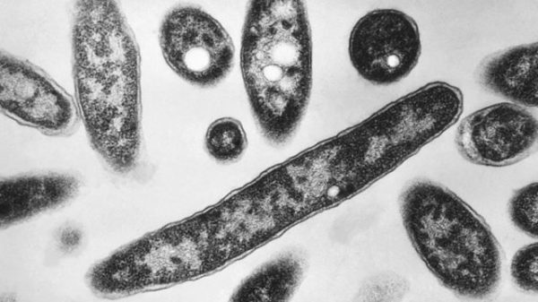 North Carolina confirms second death from Legionnaires