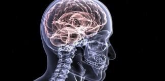 stroke, human brain