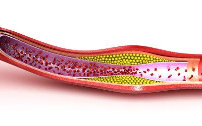 Nowe biomarkery prognostyczne miażdżycy – badania laboratoryjne użyteczne w profilaktyce i wczesnym leczeniu