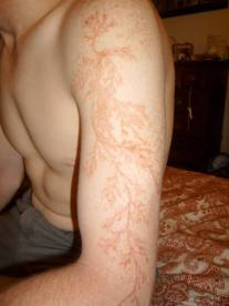 lightning-strike-effects-lichtenberg-figures