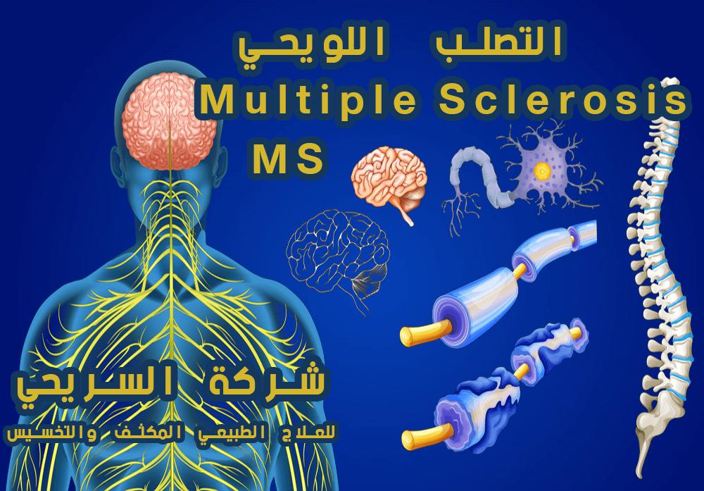 علاج طبيعي التصلب اللويحي المتعدد Multiple sclerosis MS