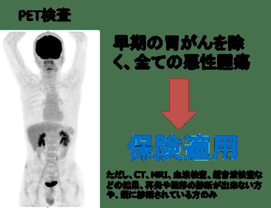 price of pet-ct examination2