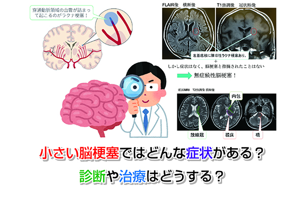 Small cerebral infarction Eye-catching image